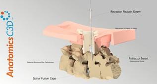 AnatomicsRx提交FUSEbox 3D打印植入物未来设计