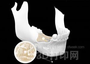 新型定制化3D打印机 可吸收骨移植物