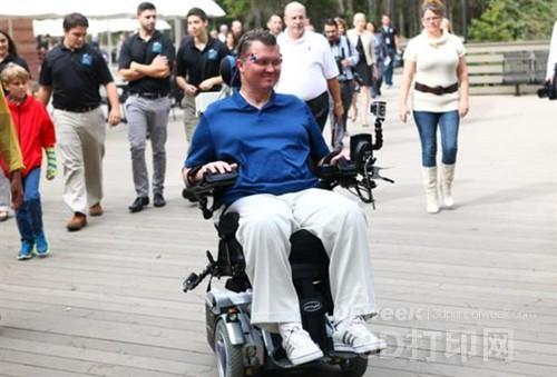 最新3D打印轮椅装置:可通过面部运动控制