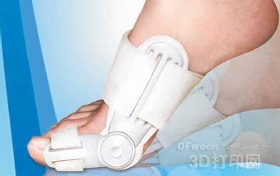 浅析3D打印技术对足踝外科的应用