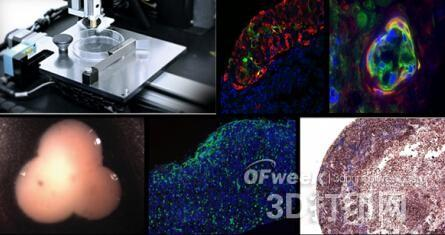 盘点2015年3D打印生物医疗十大突破