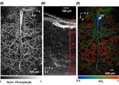 大脑成像新技术:分辨率水平达毛细血管级