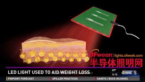 肥胖者的福音!LED医疗应用于减肥领域