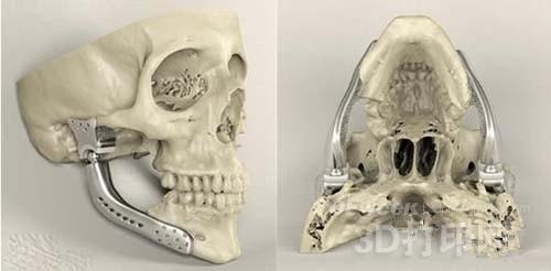 盘点业内最有争议的3D打印应用