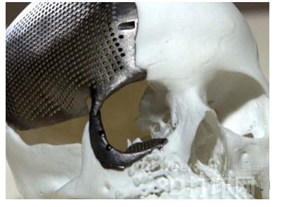 金属3D打印开启硬组织医疗新时代