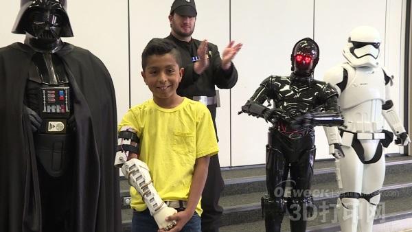 黑武士的善举:向9岁男孩馈赠3D打印仿生手臂