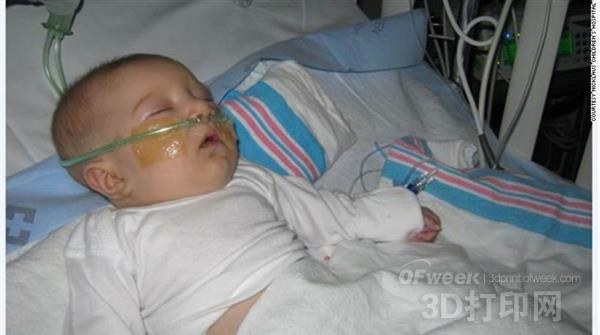 医生用3D打印虚拟现实技术拯救4月大女婴