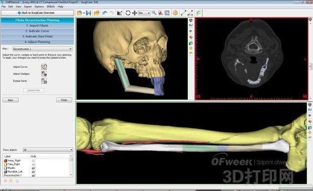 Materialise发布新软件:让医生提前进行虚拟手术