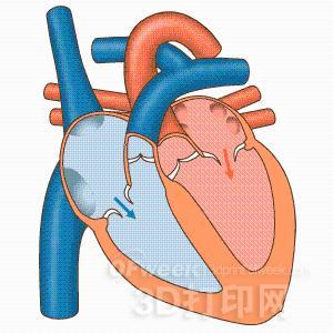 研究人员3D打印出以假乱真的心脏瓣膜模型