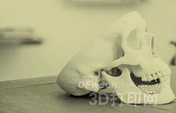 瑞士Mimedis公司:提供定制化3D打印骨骼植入物