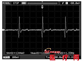 后端接入示波器,待信号稳定后就可以在示波器上观测到心电信号波形,图
