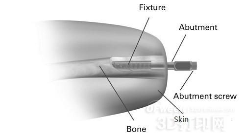 切开皮肤植入3D打印假肢技术你接受吗?