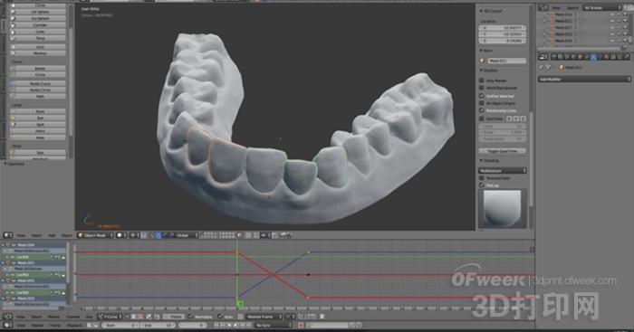 万能的3D打印!有创客用它在家DIY透明牙套