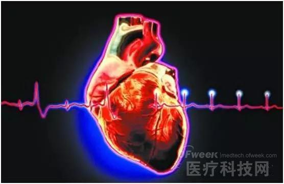 术前安装临时心脏起搏器就安全了吗?