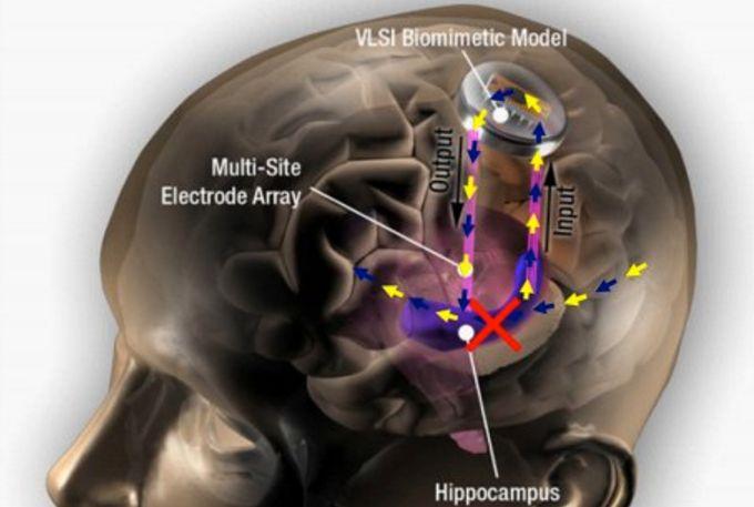 """这家公司要给大脑植入""""记忆芯片""""治疗失忆"""