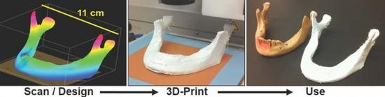 "3D打印""超弹性骨头""将成为重建手术未来"