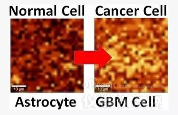 石墨烯变身传感器 可检测大脑癌细胞