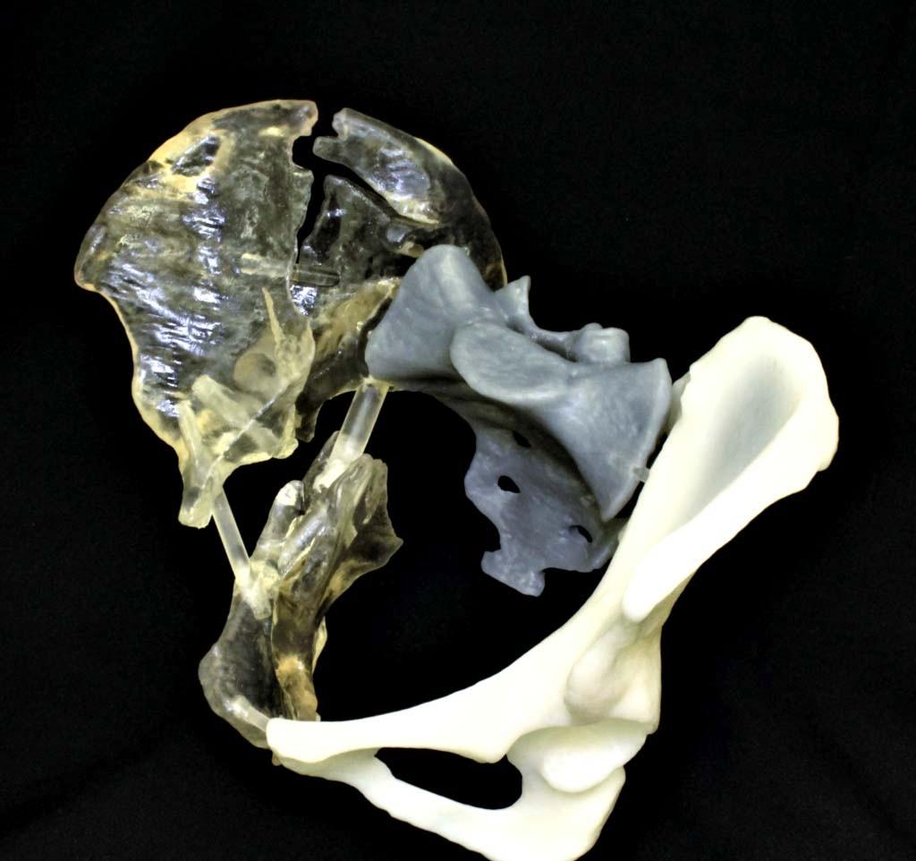 从迪拜到中国香港 谈医疗3D打印的新进展