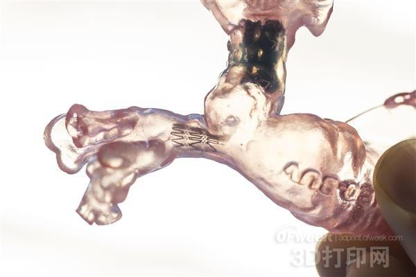 医生借3D打印心脏模型挽救婴儿的生命