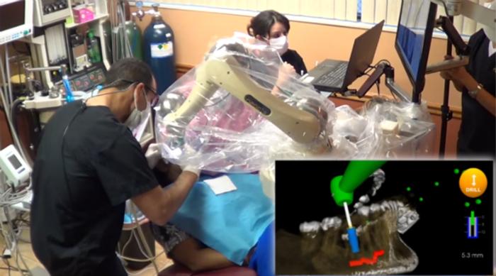 首个牙科机器人导航系统Yomi获得医生点赞