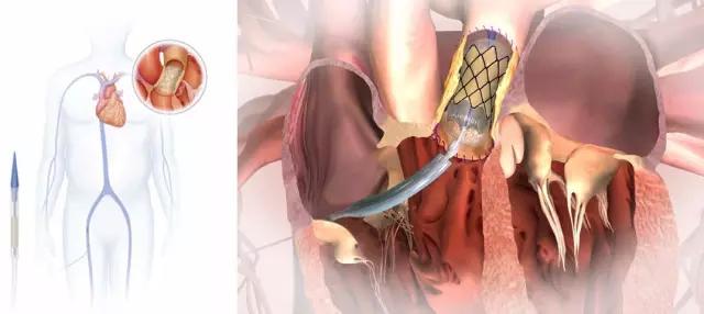 FDA通过美敦力经导管肺动脉瓣膜认证