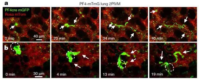《自然》最新发现肺还具有造血功能