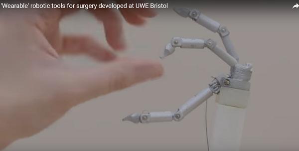 这款可穿戴微创手术机器人能超越达芬奇机器人吗?