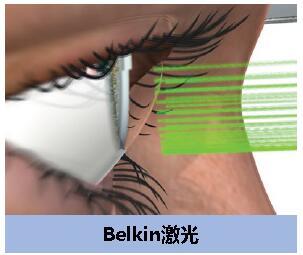 睿盟希投资青光眼激光治疗器械公司BELKIN Laser