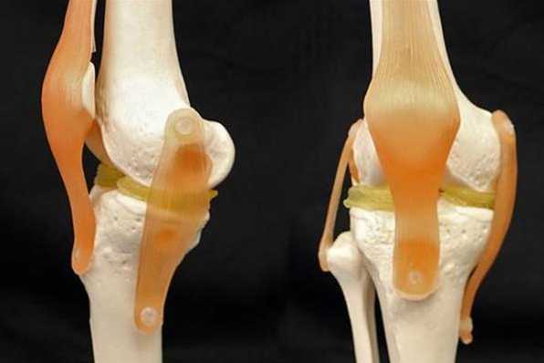 杜克大学发现可修复膝盖损伤的3D打印软骨材料