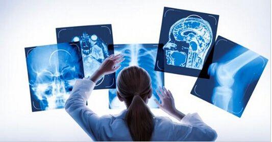 政策刺激:2020年医疗影像市场规模将达8千亿