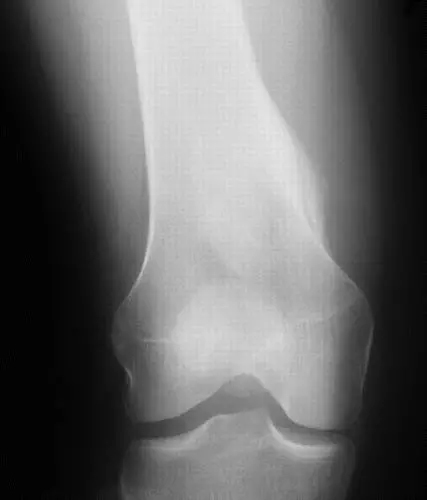 医疗影像可帮助诊断骨肿瘤