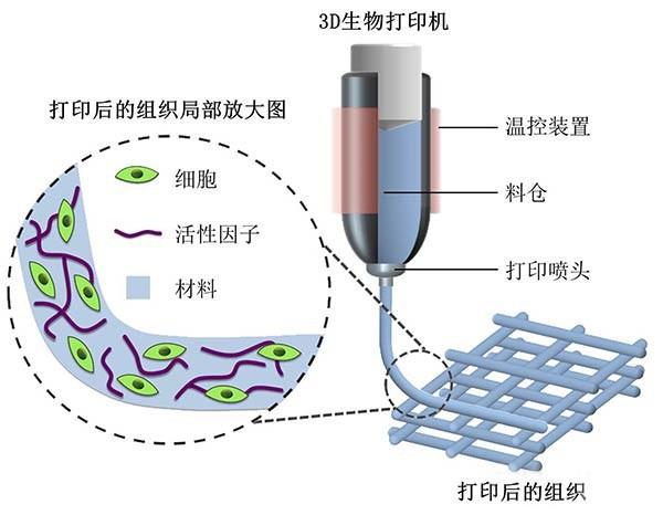 解析基于生物相容性材料的3D打印骨骼修复技术的研究与应用