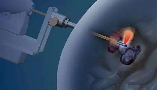 治疗微创脑损伤设备商Monteris Med完成2660万美元融资