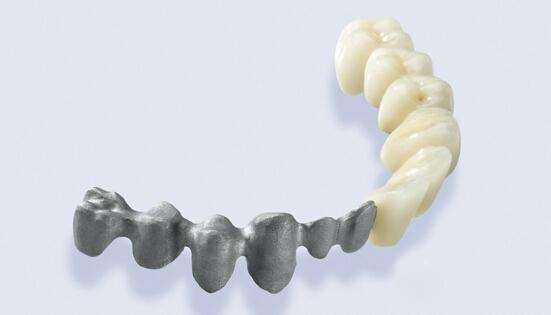 到2025年牙科3D打印市场预计实现最高增长