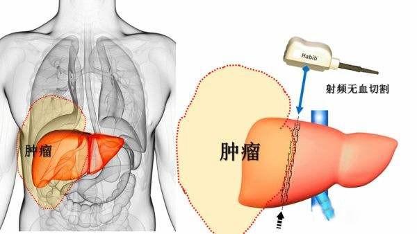 """放射性粒子治疗肿瘤,3D打印技术可望减少""""多余""""剂量"""