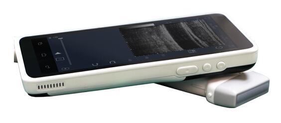 朗昇科技获3千万融资:掌上超声产品已有上千台销量