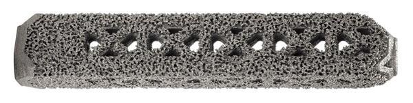 FDA批准首个钛3D打印骶髂关节植入物iFuse-3D上市