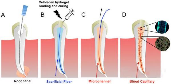 研究人员借生物3D打印技术创建替代根管治疗的血管