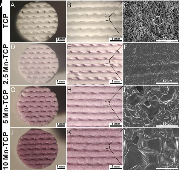 3D打印生物陶瓷用于骨、软骨修复研究获系列进展