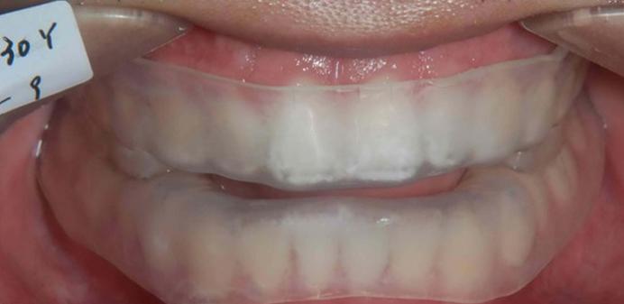 解析数字化3D打印技术在OSAHS治疗中的应用