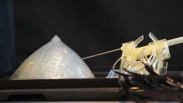 小型3D打印机器人可提高乳腺癌的诊断率