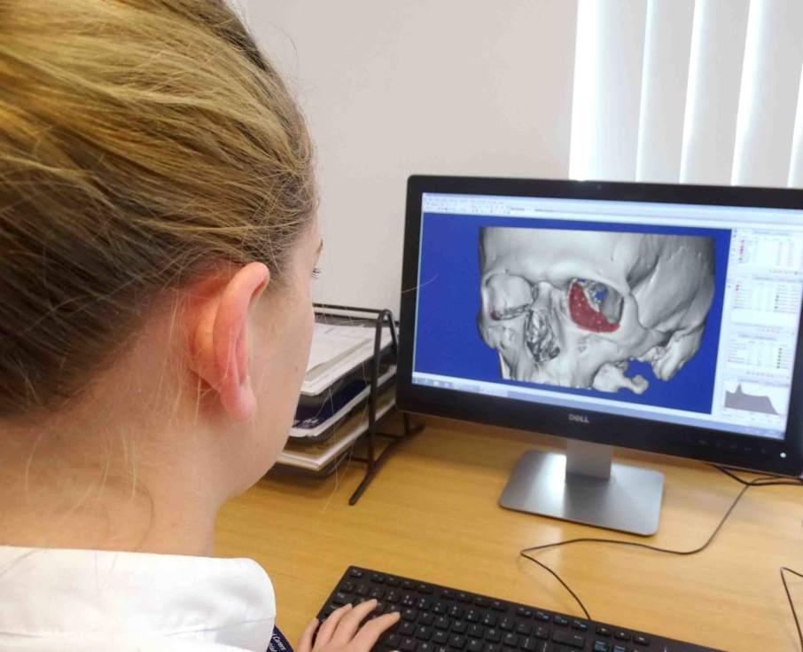 """英国诞生""""生物医学3D技师""""一职,专门设计和3D打印医用模型"""