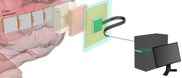 高速神经宽带接口 让大脑和计算机之间传输速度达新高