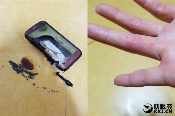 三星Galaxy S7突然爆炸自燃:20岁姑娘被烧伤