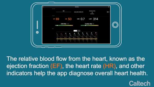 这款APP可取代超声测量法,两分钟即可诊断心脏健康
