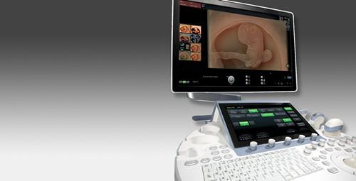 GE Voluson E10超声系统内置3D打印支持