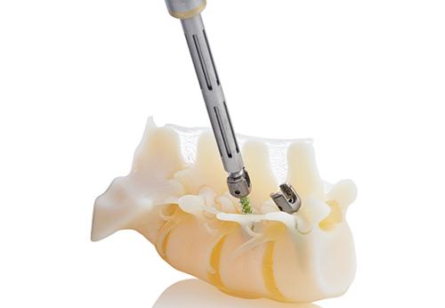 逼真的解剖结构:将椎弓根螺钉打入患者脊柱的3D打印模型-医用3D打