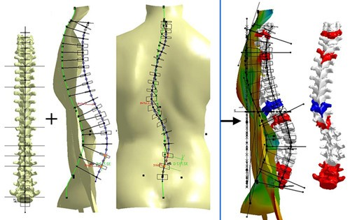 三维建模的脊柱侧凸提供非侵入性的诊断选项