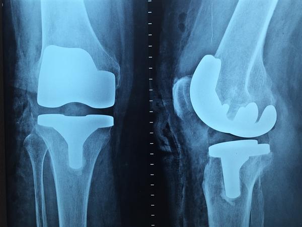 安检、医用X射线对人体有危害吗?