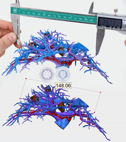 国内医院开发出低成本、高精度的3D打印肝脏模型新方法